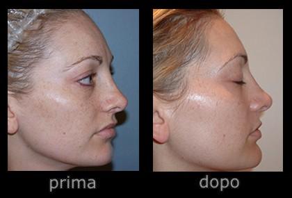 trattamento viso luce pulsata